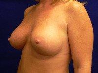 breast augmentation richmond va photos