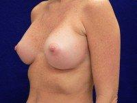 photograpghs breast implant rupture leak