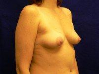 breast implant photos