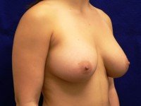 breast-implant-photos