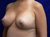 breast lift mastopexy benelli lollipop anchor photographs
