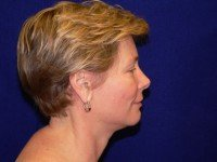 facelift face lift rhytidectomy photographs