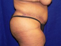 tummy tuck abdominoplasty photos