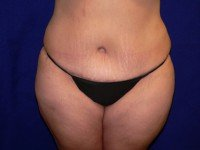 tummy tuck abdominoplasty photos