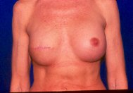 breast reconstruction cancer TRAM expander implant