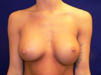 bottoming out breast implants richmond va photos