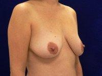 breast lift mastopexy benelli lollipop anchor photo