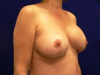 breast implant rupture capsular contracture photo