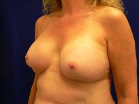 capsular contracture breast implants richmond virginia