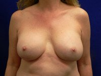 capsular contracture breast implants richmond virginia