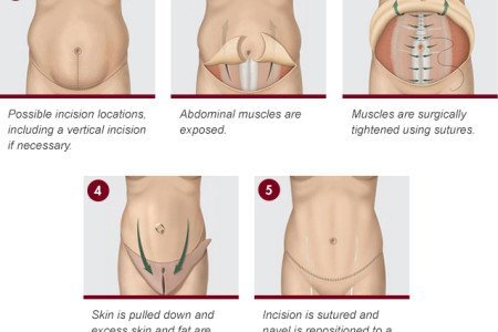 Tummy Tuck: Procedure, Recovery, Risks, and Cost for Abdominoplasty