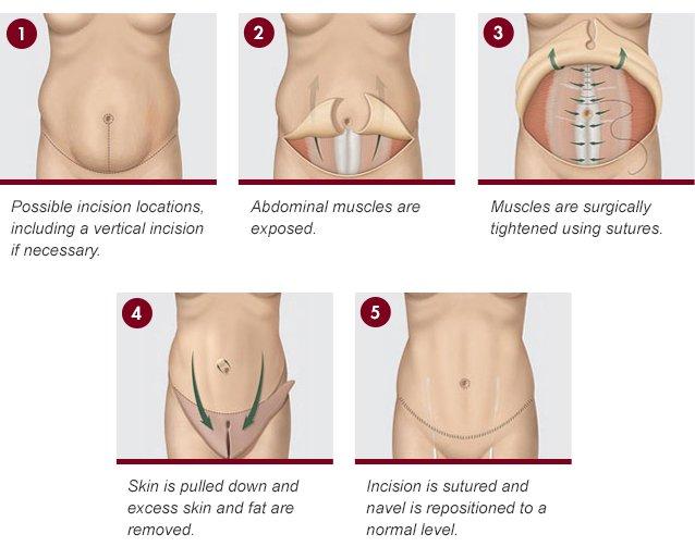 Tummy Tuck procedure steps photos
