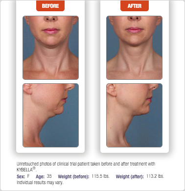 Kybella Before and After Photo Richmond VA DeConti