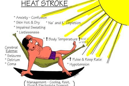 Heat Exhaustion and Heat Stroke Prevention for These Hot Summer Days