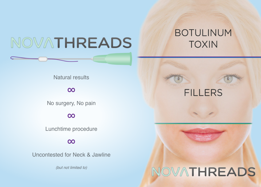 Novathreads Pdo Threads For Lifting The Brow Cheeks And