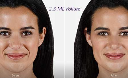 Vollure: The Newest Dermal Filler