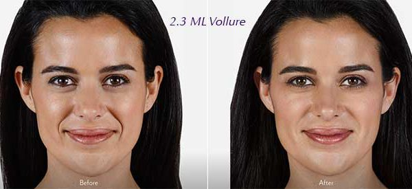 Vollure:  The Newest Dermal Filler