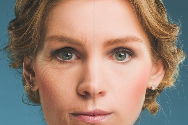 Botox Cosmetic: FDA Approved for Forehead, Crow's Feet and Glabellar Wrinkles.