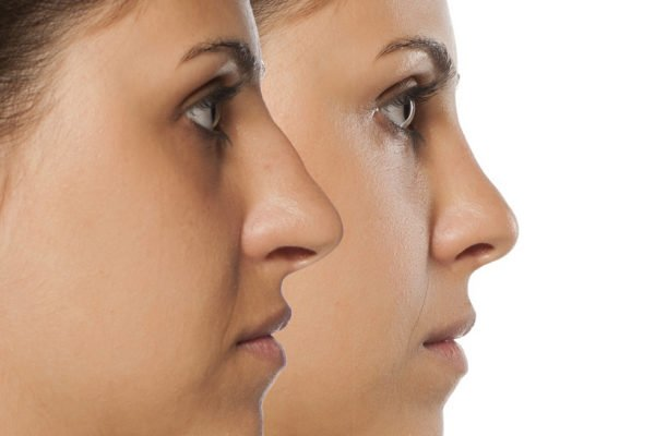 """30 Minute Nose Job * The """"Liquid Rhinoplasty"""" with Dermal Fillers"""
