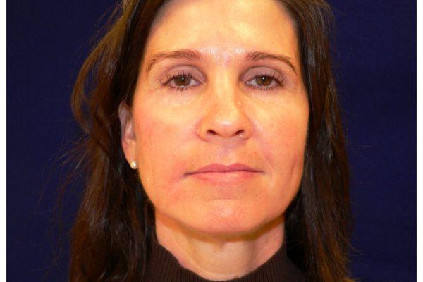 Dermal Filler Facial Injections