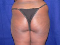 Fat Injection Buttocks Photos