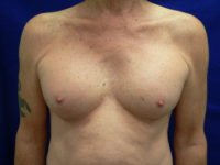 Transgender Breast Augment After Photo
