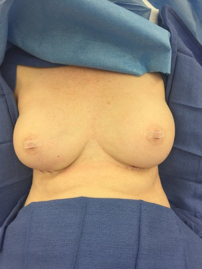 Ruptured Saline Breast Implants After Photo