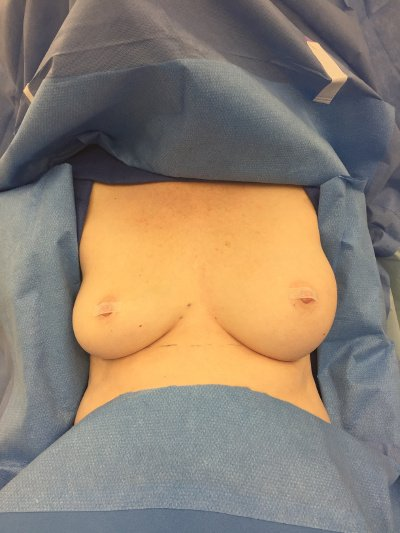 Ruptured Saline Breast Implants Before Photo