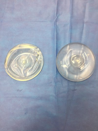 Ruptured Saline Breast Implants