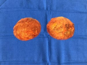 En Bloc Resection Breast Implant Illness